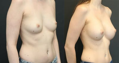 Breast Augmentation Gallery - Patient 11681775 - Image 1