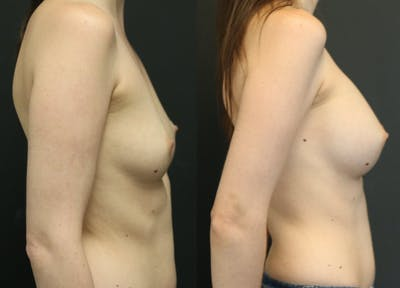 Breast Augmentation Gallery - Patient 11681775 - Image 2