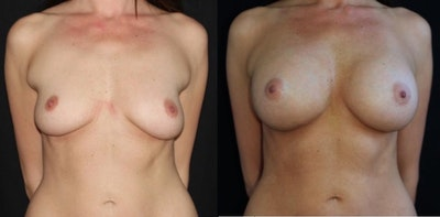Breast Augmentation Gallery - Patient 11681776 - Image 1