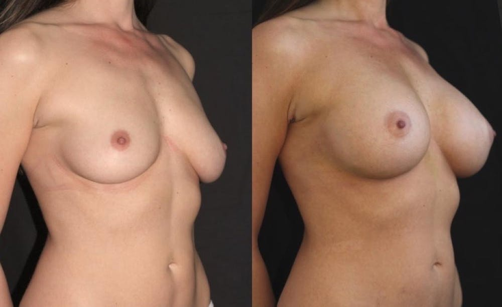 Breast Augmentation Gallery - Patient 11681776 - Image 4