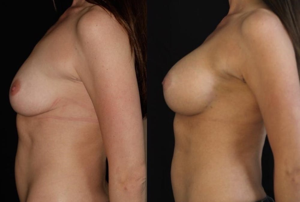 Breast Augmentation Gallery - Patient 11681776 - Image 3