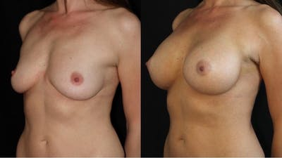 Breast Augmentation Gallery - Patient 11681776 - Image 2