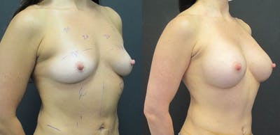 Breast Augmentation Gallery - Patient 11681778 - Image 4