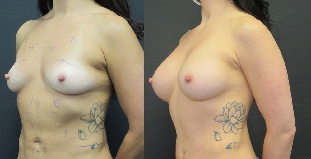 Breast Augmentation Gallery - Patient 11681778 - Image 2