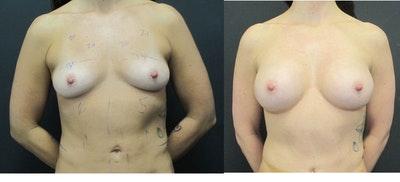 Breast Augmentation Gallery - Patient 11681778 - Image 1