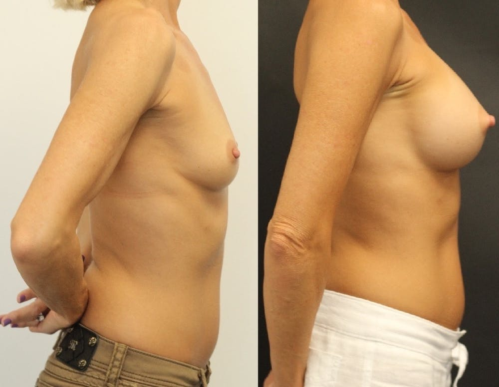 Breast Augmentation Gallery - Patient 11681779 - Image 3