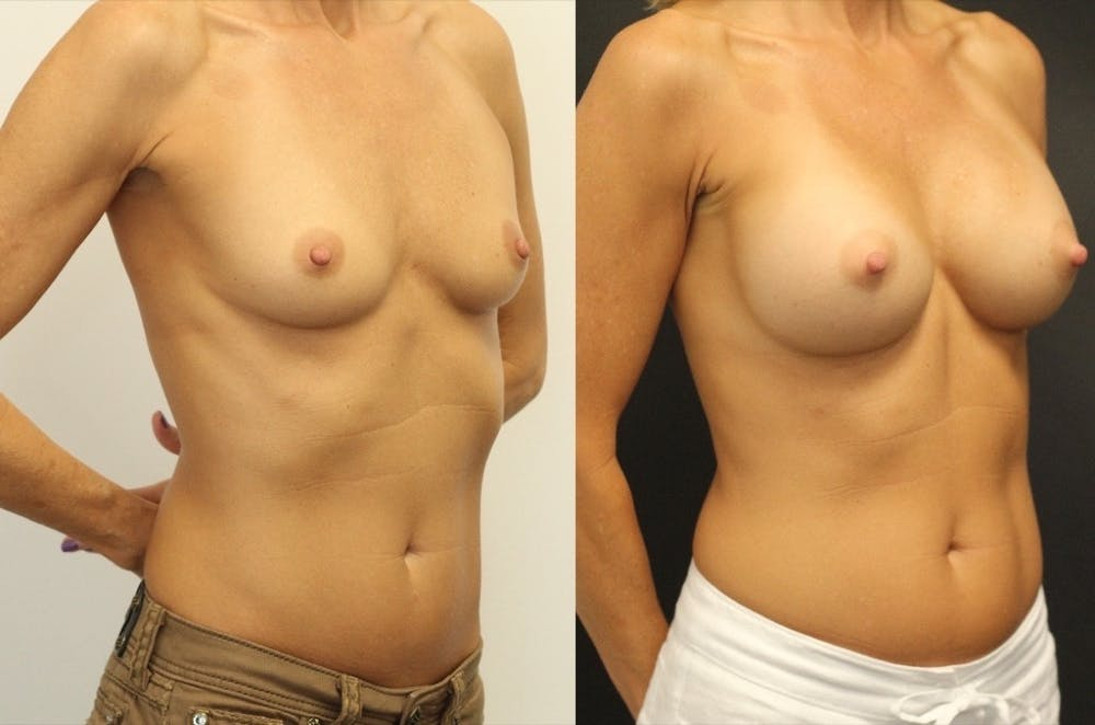 Breast Augmentation Gallery - Patient 11681779 - Image 2