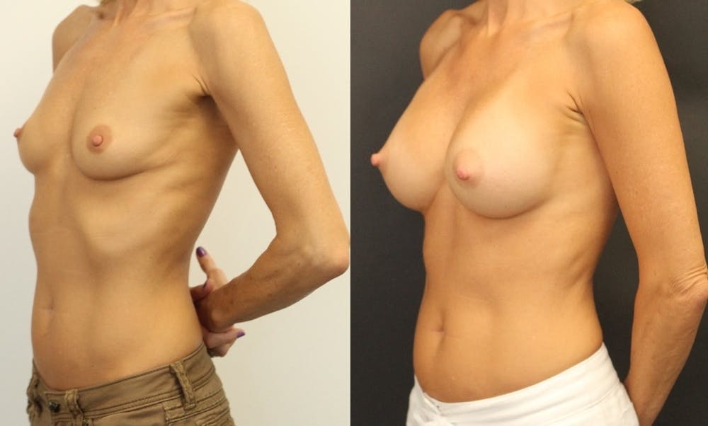 Breast Augmentation Gallery - Patient 11681779 - Image 4