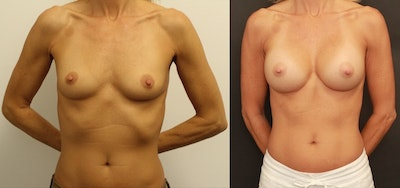 Breast Augmentation Gallery - Patient 11681779 - Image 1