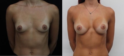 Breast Augmentation Gallery - Patient 11681780 - Image 1