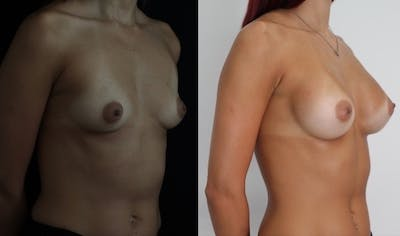 Breast Augmentation Gallery - Patient 11681780 - Image 4