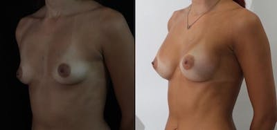 Breast Augmentation Gallery - Patient 11681780 - Image 2