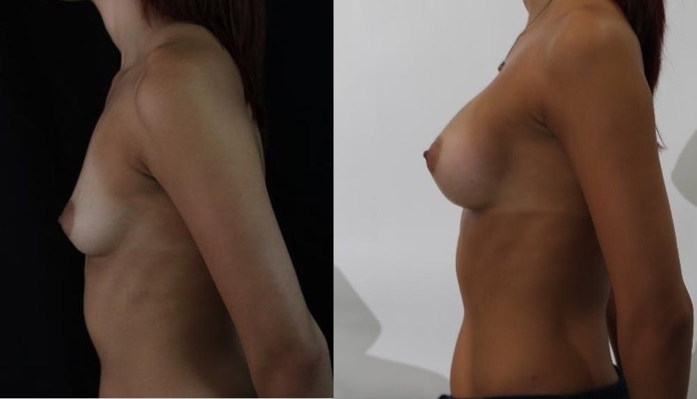 Breast Augmentation Gallery - Patient 11681780 - Image 3
