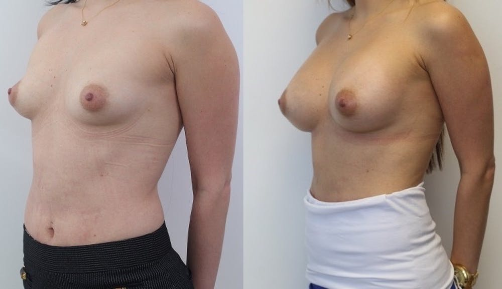 Breast Augmentation Gallery - Patient 11681781 - Image 2