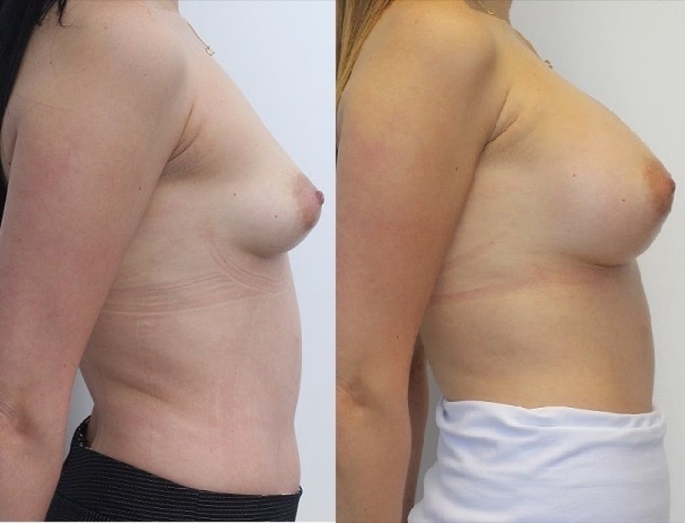Breast Augmentation Gallery - Patient 11681781 - Image 4