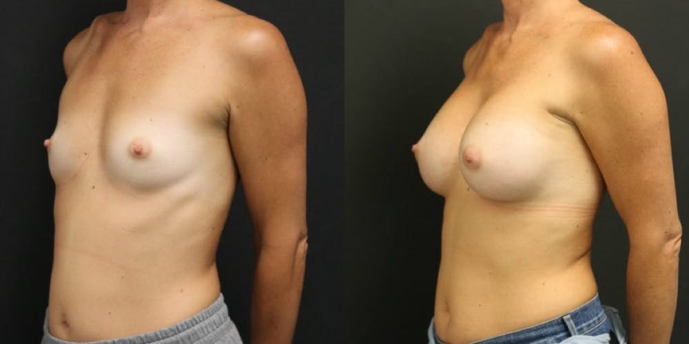 Breast Augmentation Gallery - Patient 11681782 - Image 2