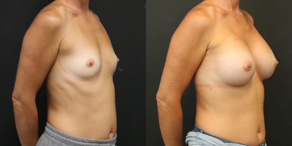Breast Augmentation Gallery - Patient 11681782 - Image 4