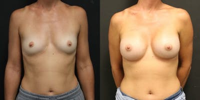 Breast Augmentation Gallery - Patient 11681782 - Image 1