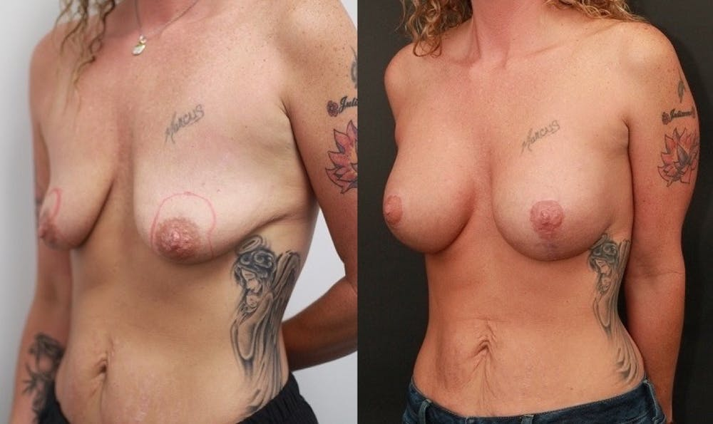Breast Lift Gallery - Patient 11681795 - Image 3
