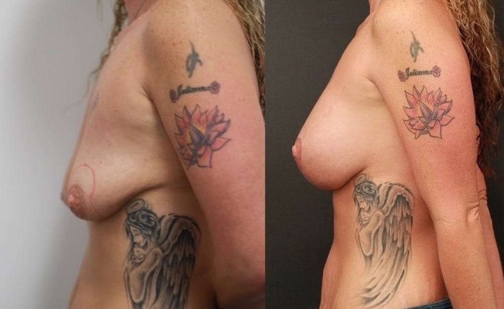 Breast Lift Gallery - Patient 11681795 - Image 4