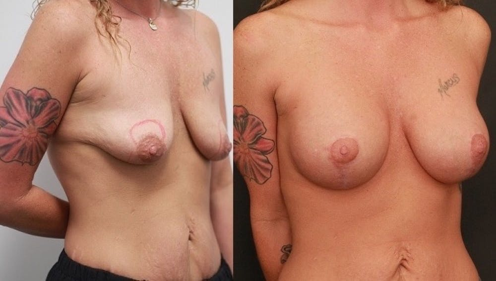 Breast Lift Gallery - Patient 11681795 - Image 2