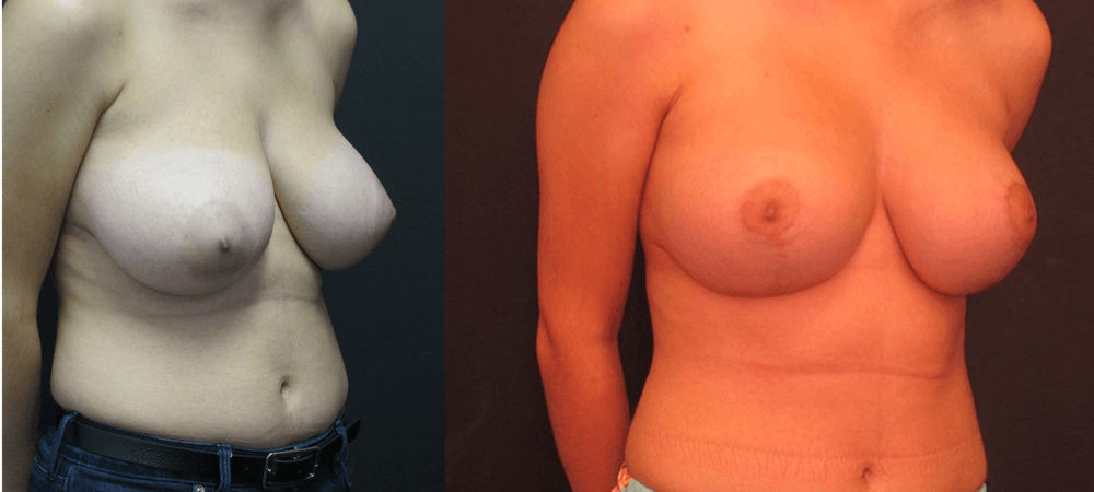 Breast Lift Gallery - Patient 11681804 - Image 2