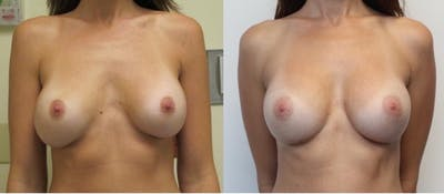 Breast Revision Gallery - Patient 11681812 - Image 1