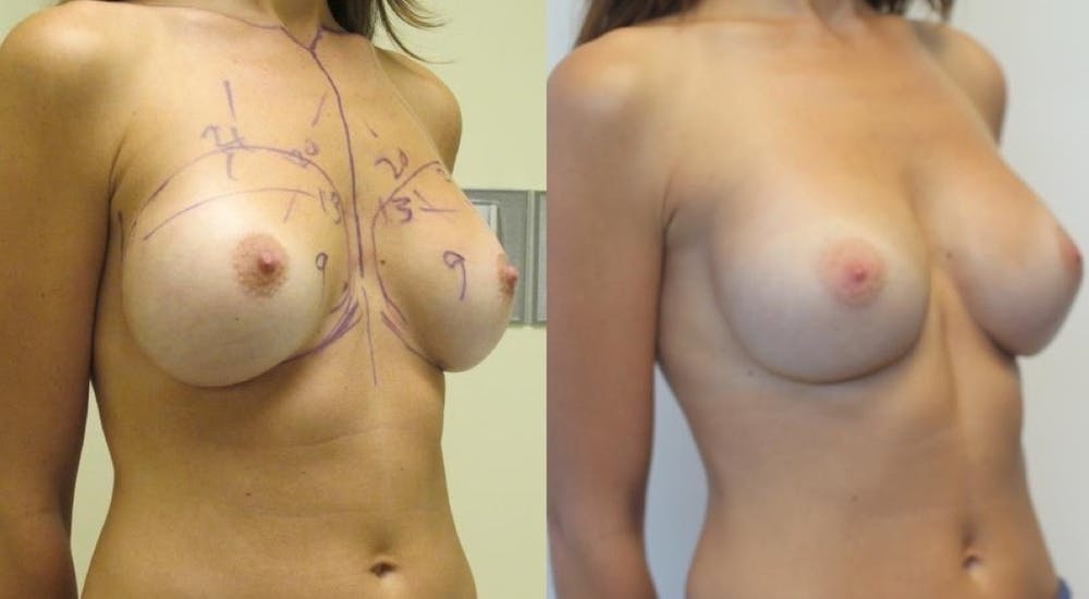 Breast Revision Gallery - Patient 11681812 - Image 2