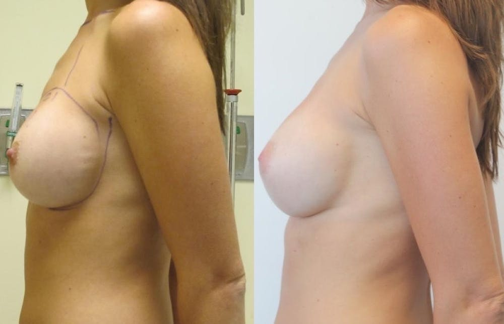Breast Revision Gallery - Patient 11681812 - Image 4