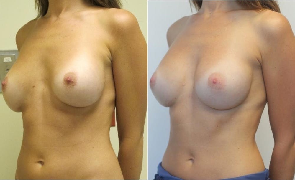 Breast Revision Gallery - Patient 11681812 - Image 3