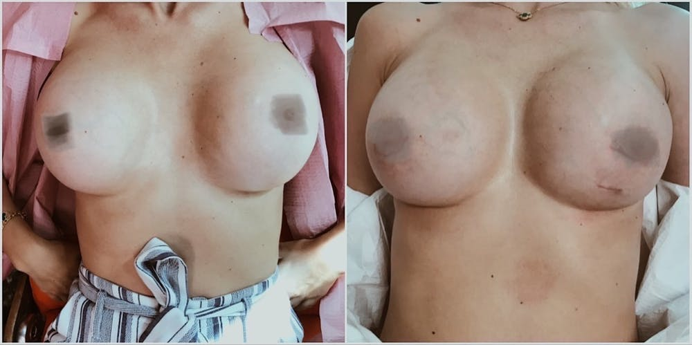 Breast Revision Gallery - Patient 11681814 - Image 1