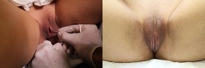Labiaplasty Gallery - Patient 11681830 - Image 1