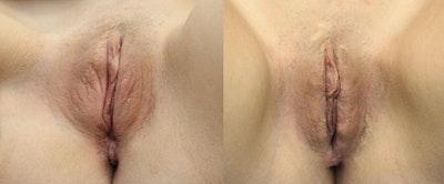 Labiaplasty Gallery - Patient 11681833 - Image 1