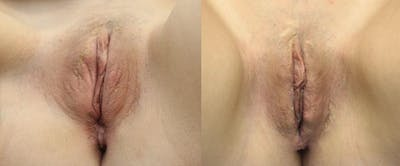 Labiaplasty Gallery - Patient 11681833 - Image 1