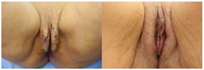 Labiaplasty Gallery - Patient 11681834 - Image 1