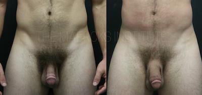 Male Enhancement Gallery - Patient 11681846 - Image 1