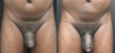 Male Enhancement Gallery - Patient 11681847 - Image 1