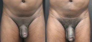 Filler Phalloplasty