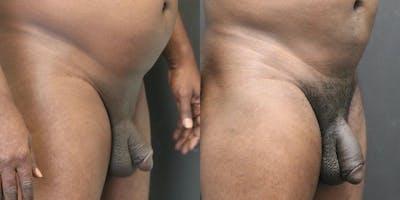 Male Enhancement Gallery - Patient 11681847 - Image 2