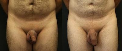 Male Enhancement Gallery - Patient 11681849 - Image 1