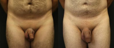 Male Enhancement Gallery - Patient 11681849 - Image 1