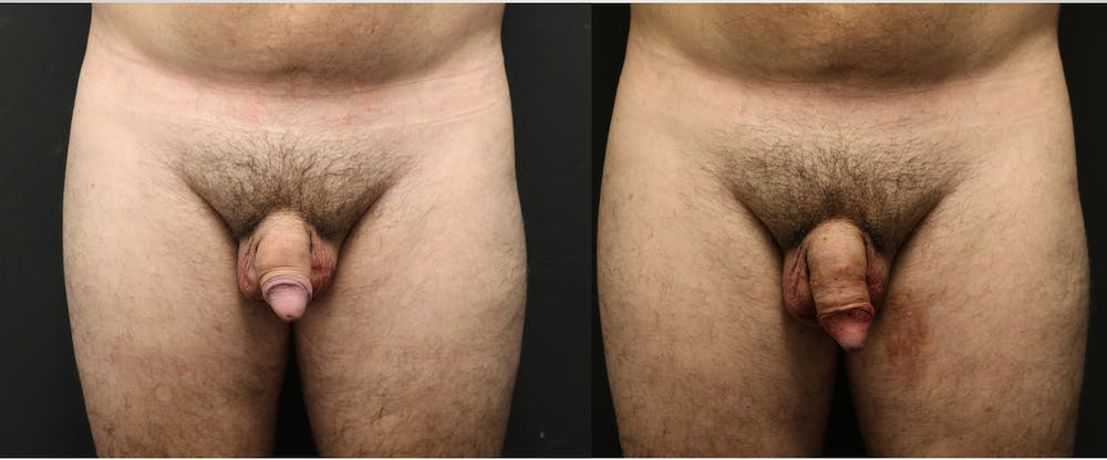 Male Enhancement Gallery - Patient 11681850 - Image 1