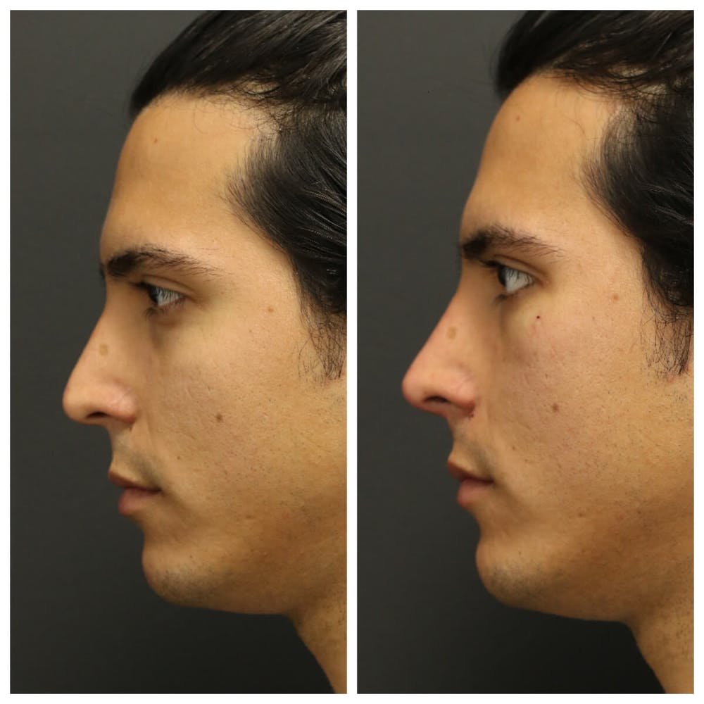 Aesthetic Facial Balancing Gallery - Patient 11682052 - Image 1