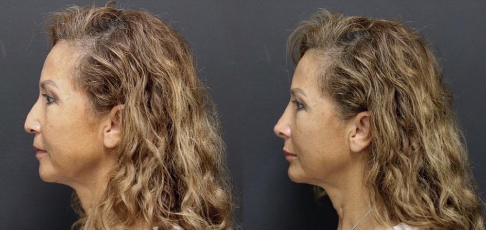 Aesthetic Facial Balancing Gallery - Patient 11682054 - Image 2