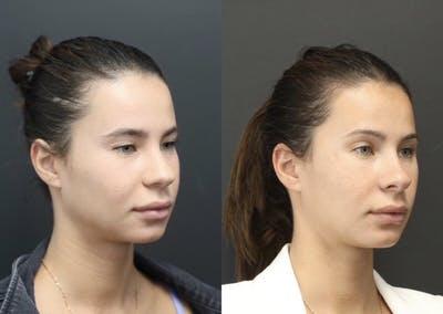 Aesthetic Facial Balancing Gallery - Patient 11682055 - Image 1
