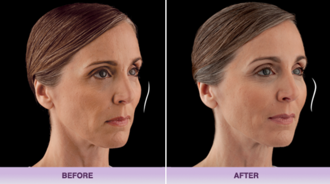 juvaderm-fillers-miami-before-after