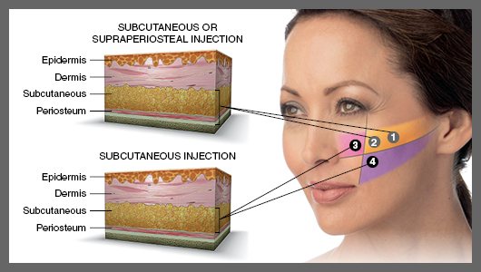 facial-injection-fillers