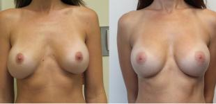 Breast Revision To Subfascial Plane