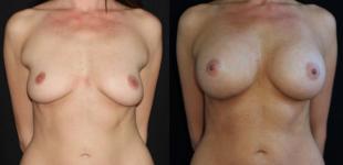 Tits natural looking Natural: 531,689
