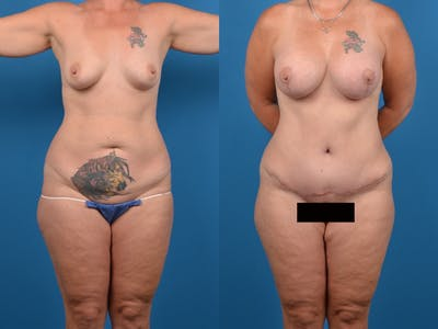 Abdominoplasty Gallery - Patient 14242432 - Image 1